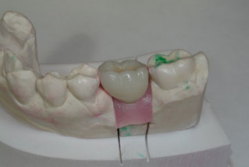 bertram_implant_crown_on_mo_cnt-1