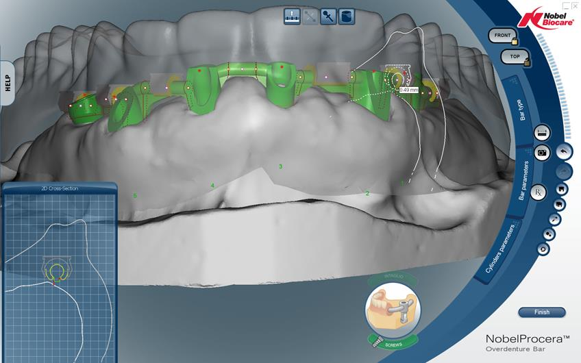 5-implant-cad-bar-3_848x530