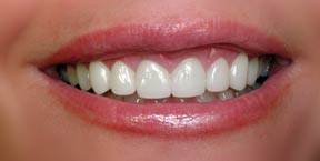 veneers-griffin-5-photo-close-up-ve_rt-after